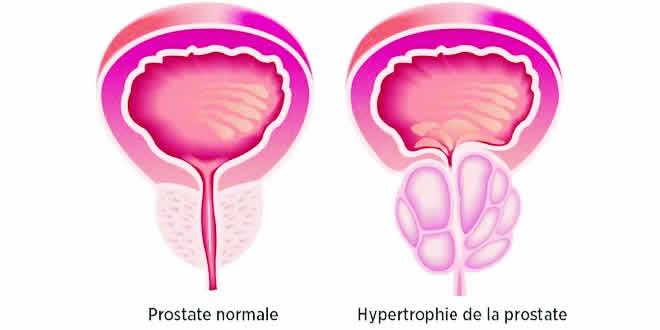 270717_prostate